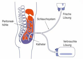 Bauchfelldialyse